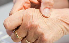 Аутоиммунный ревматоидный артрит