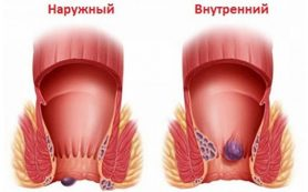 Наружный геморрой: симптомы, диагностика и натуральные средства