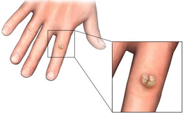 Чем вывести бородавку на пальце руки