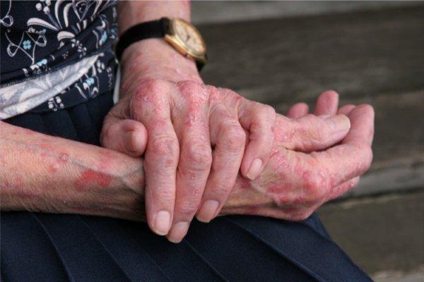 Псориаз на руках: как выявить и лечить заболевание
