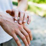 Пациенты с псориазом не знают, что им положена инвалидность