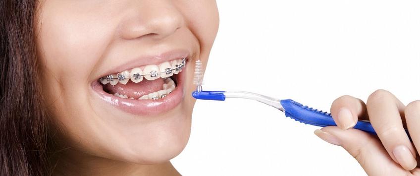 Гигиена ротовой полости во время ортодонтического лечения
