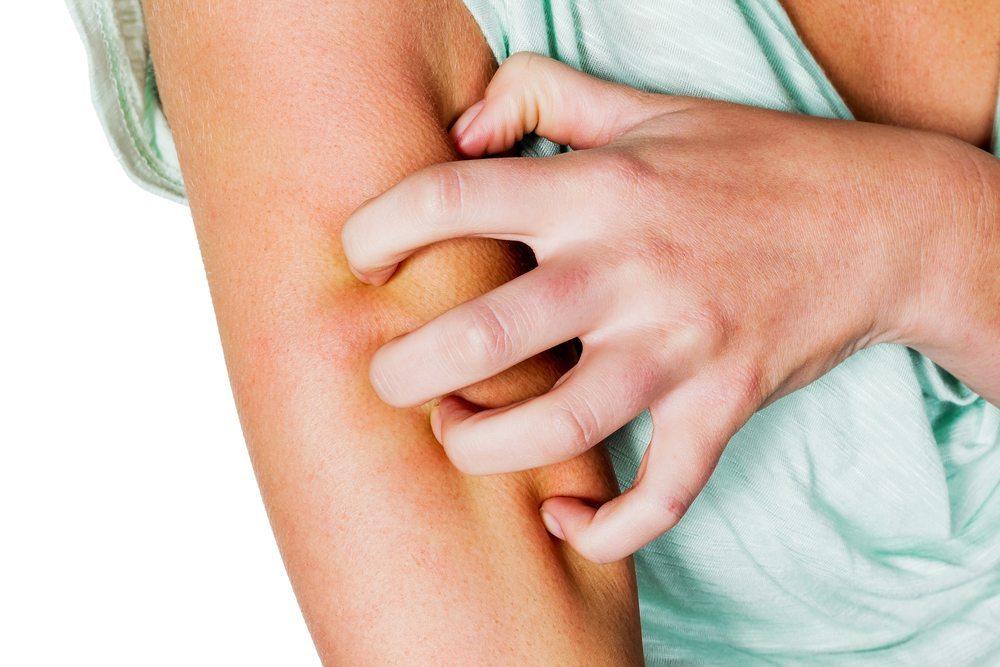 Следим за здоровьем: чем облегчить кожный зуд после загара?