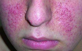 Что такое туберозный склероз?