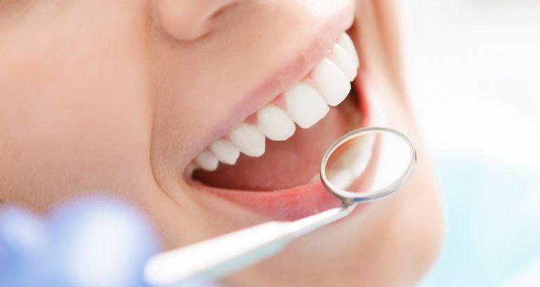 Удаление зубного камня: показания, противопоказания и техника проведения процедуры