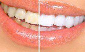 Косметическая стоматология: какие могут быть предложены процедуры