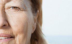 Ученые определили ключевой механизм старения кожи