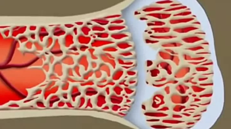 Открытие: кости в организме растут сами по себе