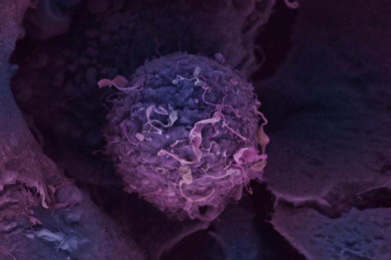 Факты, стоящие за развитием лаэтрил терапии онкологических заболеваний