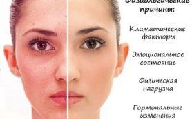 Краснеет и шелушится кожа на лице