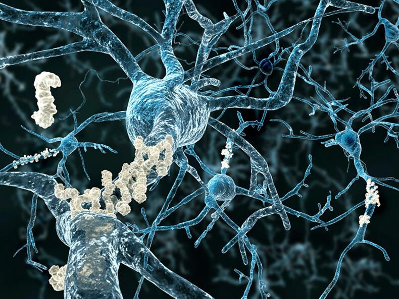 Вся правда о кортизоле: Как поддержать главный гормон в организме