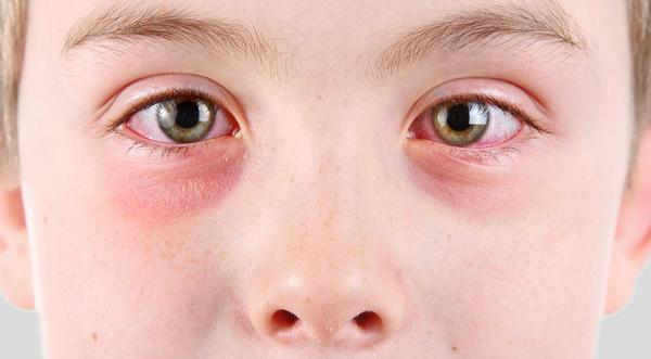 Признаки глаукомы и катаракты на ранних стадиях