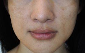 Как избавиться от пигментных пятен на лице?