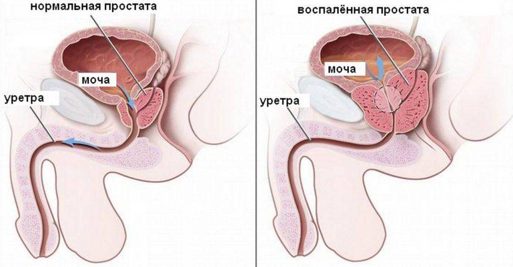 Причины развития, диагностика и лечение воспаления простаты