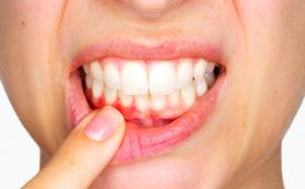 Почему сохнут и трескаются губы?