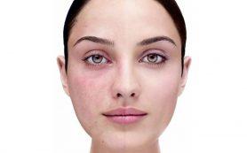 Как удаляются лазером видимые сосуды на лице и теле