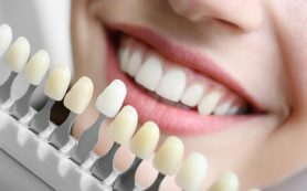 Что такое стоматологические виниры?