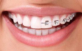 Исправление кривых зубов. Способы
