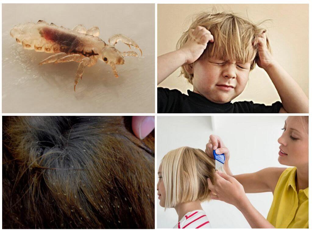 Ребенок заразился вшами: что делать