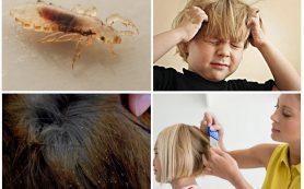 Что делать, если ребенок заразился вшами?