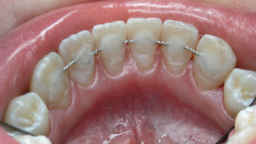 Шунтирование зубов