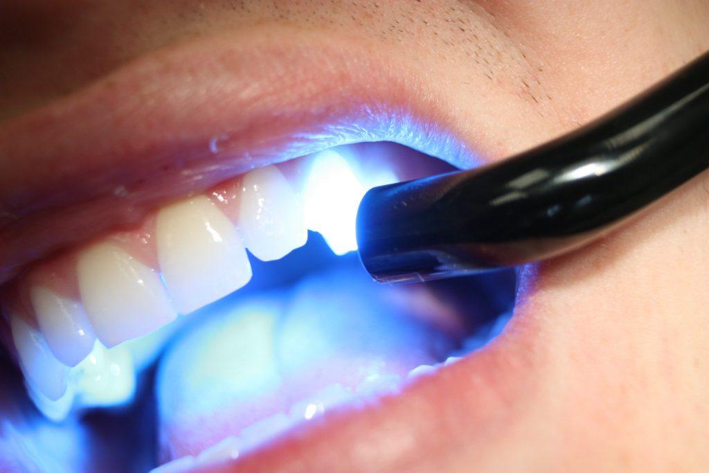 «Дент Сервис»: эффективное и безболезненное лазерное отбеливание зубов