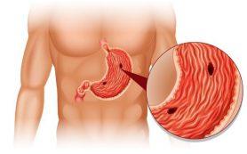 Обострился гастрит: лечим воспаление при помощи диеты