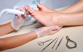 Здоровые ноги – залог красоты. Врач подолог.