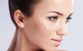 3D омоложение лица — все особенности процедуры