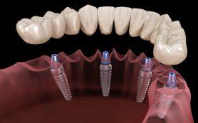 Квалифицированное протезирование в проверенной стоматологии