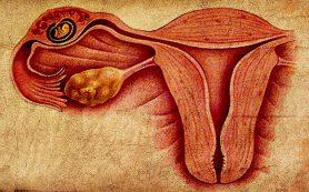 Внематочная (эктопическая) беременность