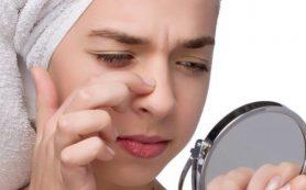 Как убрать черные точки на носу с помощью аптечных и народных средств?