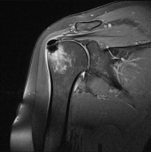 Что нужно знать перед прохождением МРТ плечевого сустава в СПБ