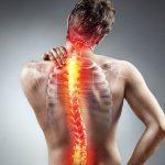 Скрутило спину – что делать?