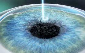 LASIK: эффективный метод коррекции зрения