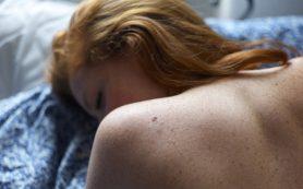Прыщи на спине и шее: откуда берутся и как с ними справиться