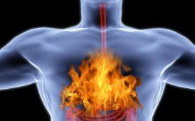 Изжога — причины возникновения, симптомы и лечение