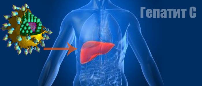 Как и где лечить гепатит С