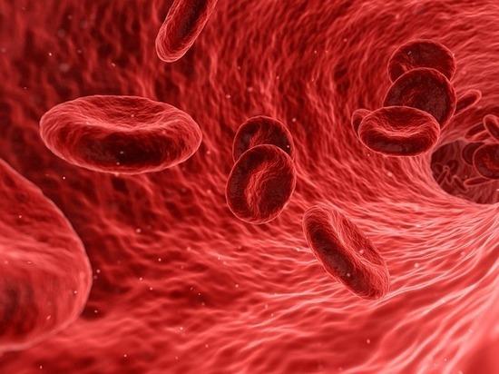 Лейкоз: диагностика и лечение