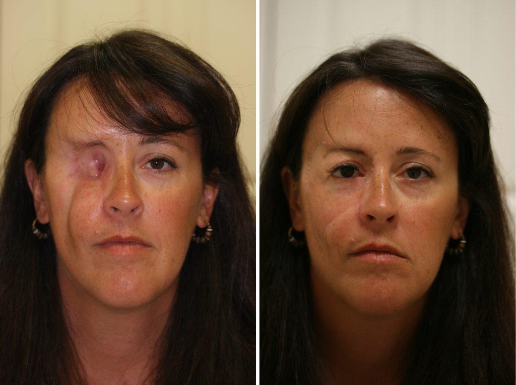 Почему может потребоваться установка лицевого протеза?