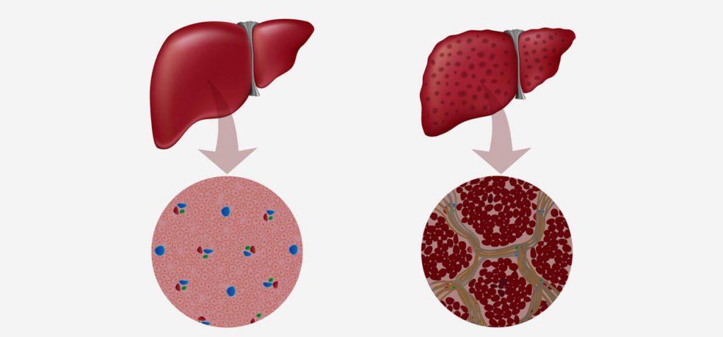 Как предотвратить гепатит В