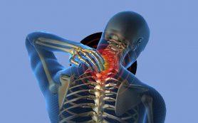 Чего ждать от шейного остеохондроза