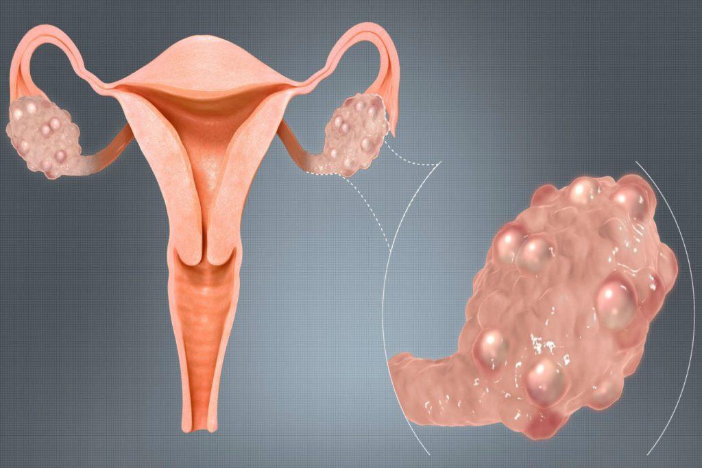 Эффективные способы лечения поликистоза яичников