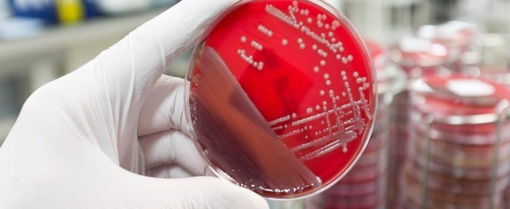 Излишняя стерильность: как не заразиться стафилококком