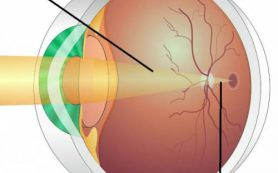 Влияние диабета на зрение