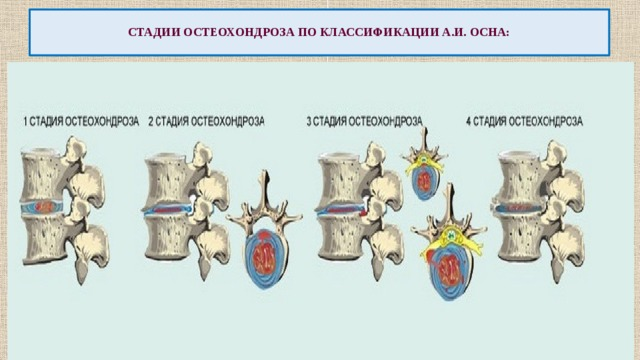 Теории (причины) развития остеохондроза