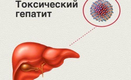 Острый токсический гепатит у взрослых: причины возникновения, симптомы, диагностика и лечение