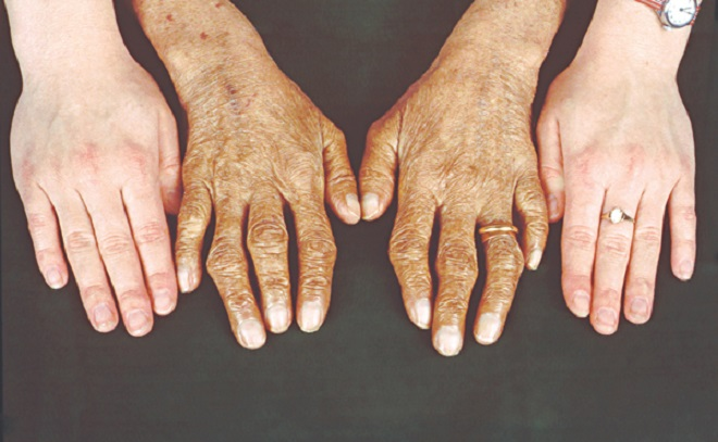 Гемохроматоз: избыток железа в организме