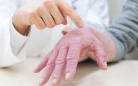 Аллергический дерматит: как справиться?