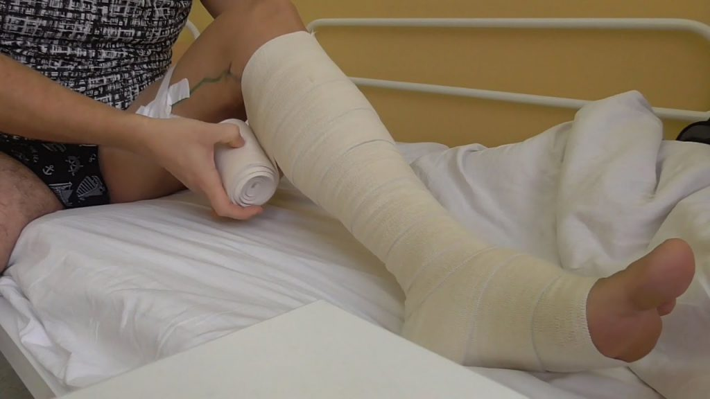 Чулки после операции на венах ног